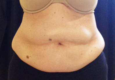 CoolSculpting Before & After Patient #210