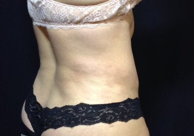 CoolSculpting Before & After Patient #123