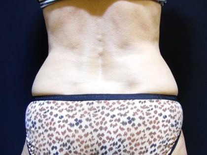 CoolSculpting Before & After Patient #201
