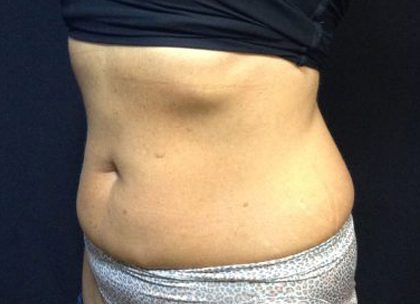 CoolSculpting Before & After Patient #171