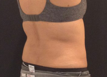 CoolSculpting Before & After Patient #157