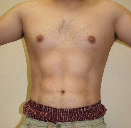 Vaser Lipo Before & After Patient #1037
