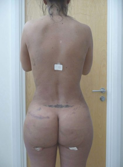 Vaser Lipo Before & After Patient #1045