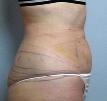 Vaser Lipo Before & After Patient #1048