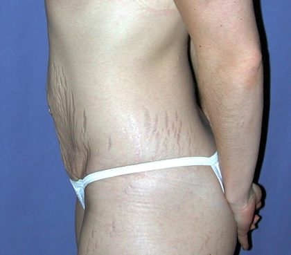 Vaser Lipo Before & After Patient #1053