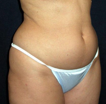 Vaser Lipo Before & After Patient #1058