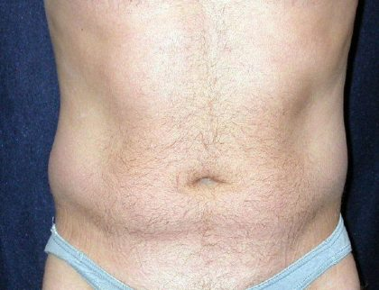 Vaser Lipo Before & After Patient #1063