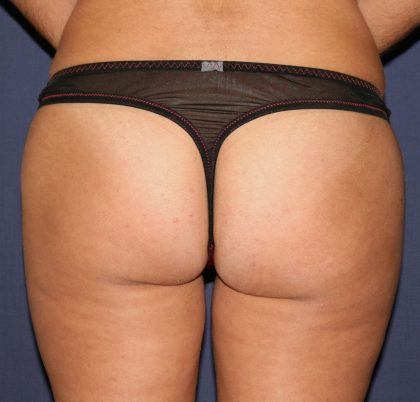 Vaser Lipo Before & After Patient #1068