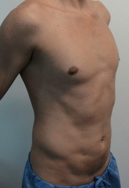 Vaser Lipo Before & After Patient #1071