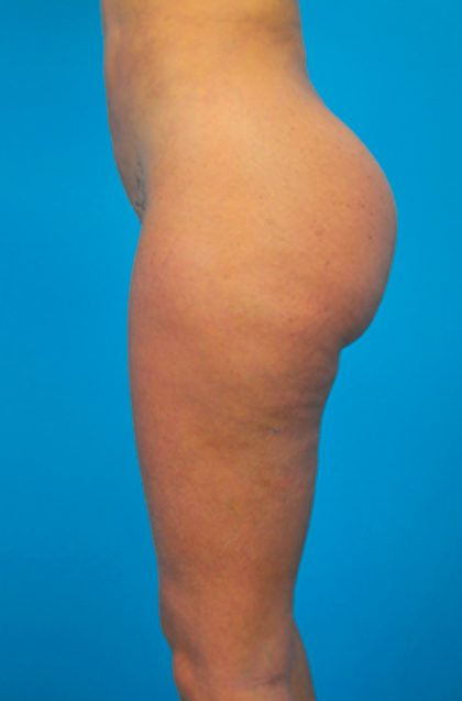 Vaser Lipo Before & After Patient #1074