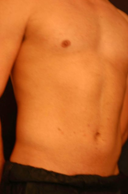 Vaser Lipo Before & After Patient #1085