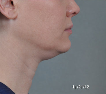 ThermiTight Before & After Patient #1138