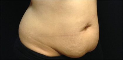 CoolSculpting Before & After Patient #868