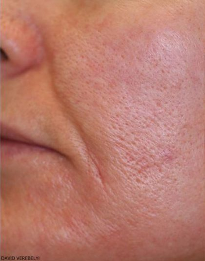 Laser Genesis Before & After Patient #725