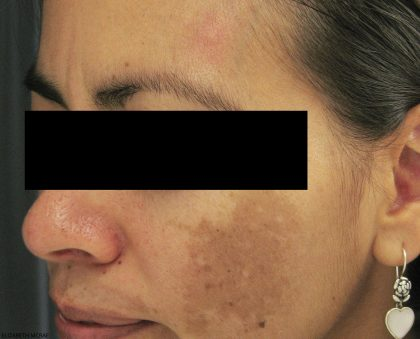 Laser Genesis Before & After Patient #731