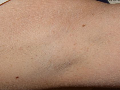 Laser Hair Removal Before & After Patient #734