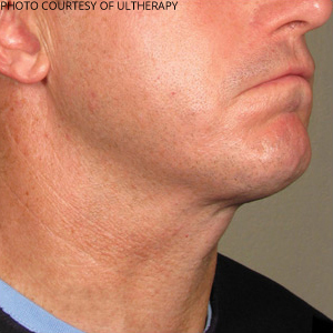 Ultherapy Before & After Patient #684