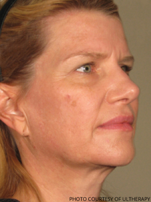 Ultherapy Before & After Patient #680