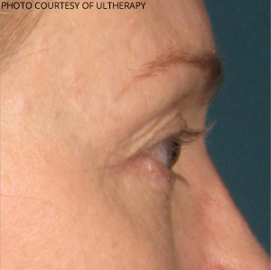 Ultherapy Before & After Patient #687