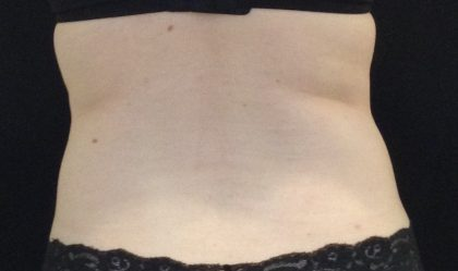 CoolSculpting Before & After Patient #1248