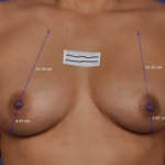 ThermiBreast Before & After Patient #1415