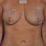 ThermiBreast Before & After Patient #1411