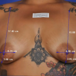 ThermiBreast Before & After Patient #1420