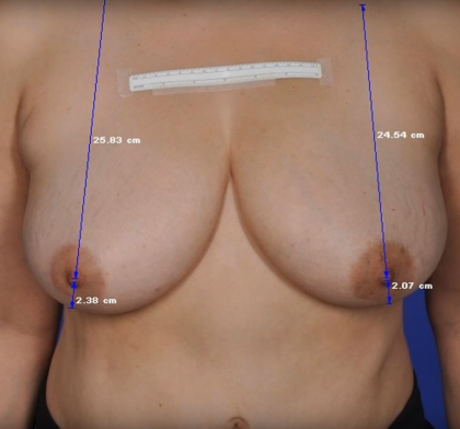 ThermiBreast Before & After Patient #1424