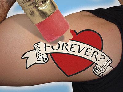 Enlighten Laser Tattoo Removal Portland, Oregon | Bridgetown