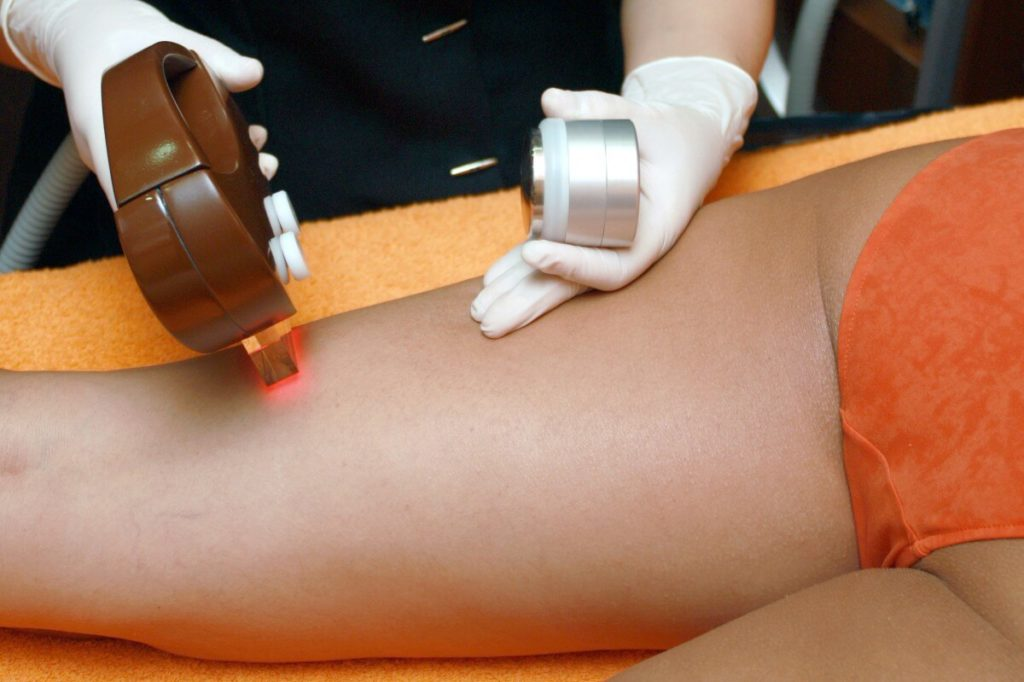Luxe Laser Hair Removal Service